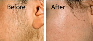 Hair removal results after and IPL treatment