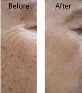 Typical treatment effects of IPL for brown spot removal